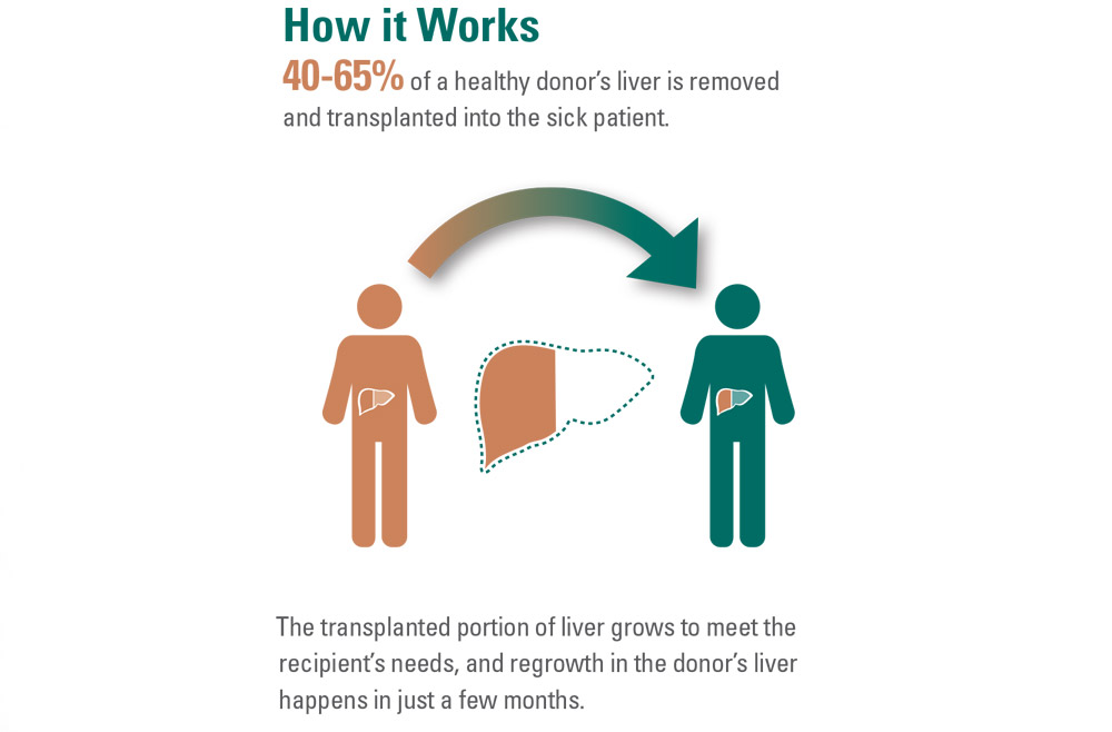 How it works infographic: 40 to 64% of the healthy liver is transplanted