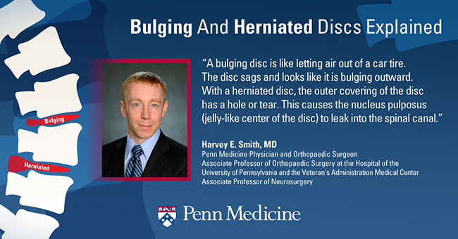 Bulging Disc Vs  Herniated Disc: What's The Difference