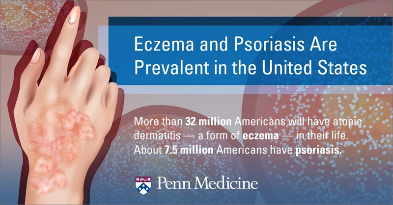 infographic_shows_hand_with_broken_out_skin_explains_how_many_people_have_psoriasis_or_eczema