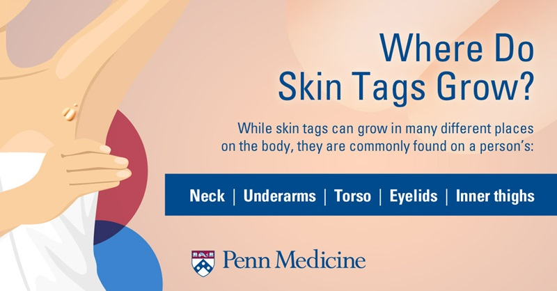 The Skinny On Skin Tags 6 Questions And Answers Penn Medicine