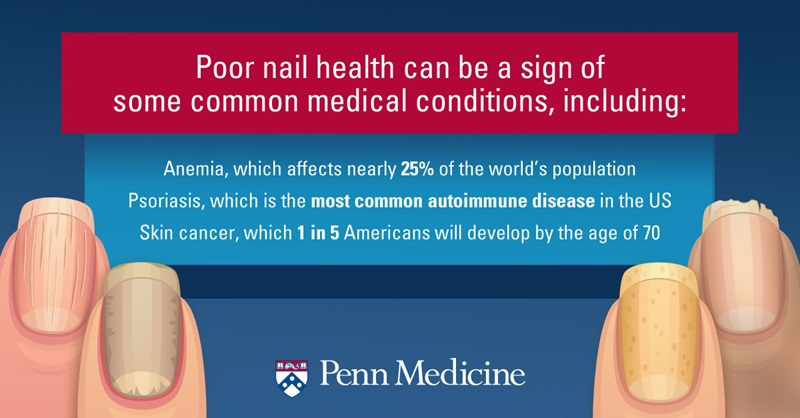 infographic_shows_nails_in_poor_health_explains_can_be_sign_of_anemia_psoriasis_skin_cancer