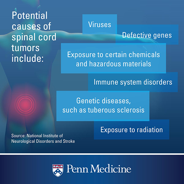 When You Could Have A Spinal Tumor And Why It S So Hard To Diagnose Penn Medicine