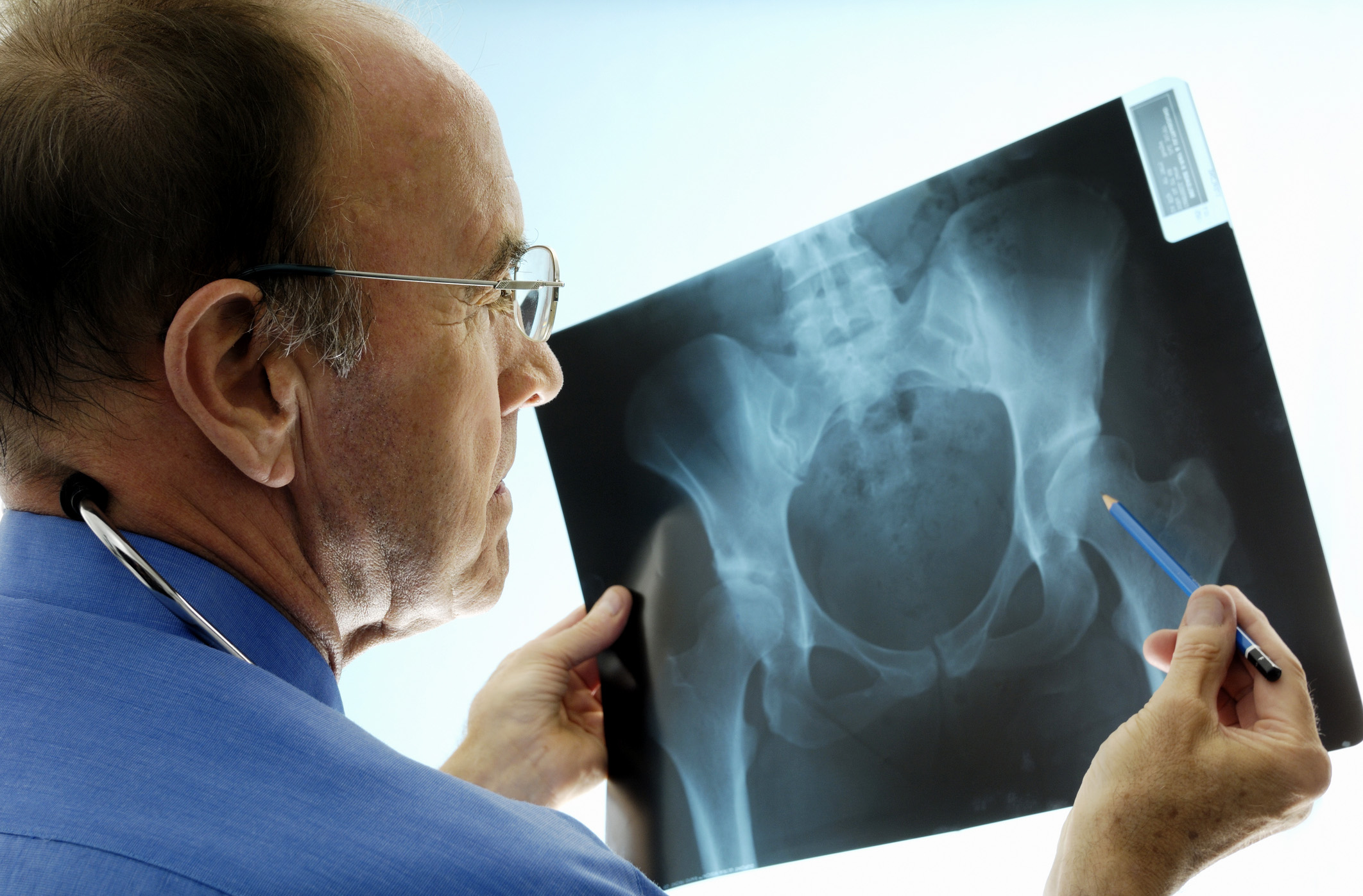 Orthopedic Surgeons Seven Things You Need to Know   Penn Medicine