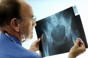 A male doctor examines a hip x-ray.