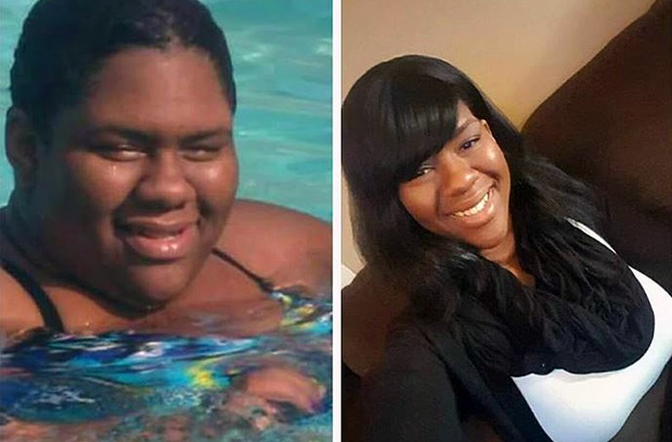 Side-by-side comparison of young woman before and after weight-loss surgery