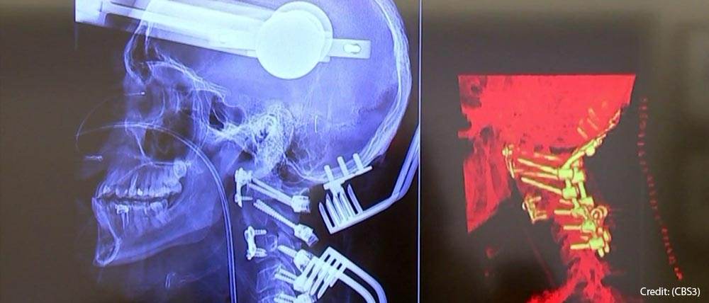 Image courtesy of CBS 3 | x-ray of robot-assisted spinal surgery