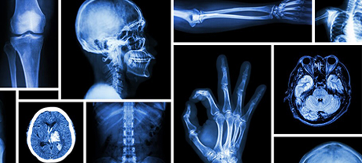 radiology medical imaging and radiologist i Radiology associates patients patient registration online forms exam & prep looking ahead: medical imaging innovation in.